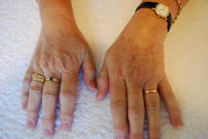 Hands after IPL Limelight treatmetn