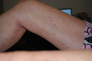 Leg Veins treated by Laser Vascular treatment
