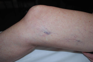 Laser Vascular treatment of Leg Veins