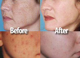 Chemical Peels - before and after